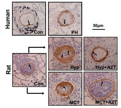 Immunohistochemistry (Formalin/PFA-fixed paraffin-embedded sections) - Anti-Telomerase reverse transcriptase antibody [Y182] (ab32020)