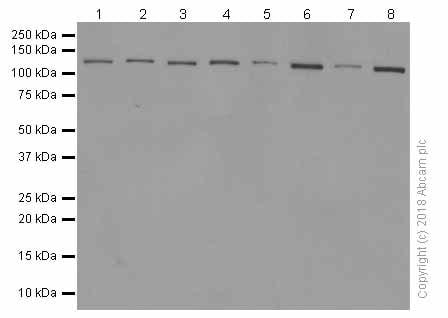 Western blot - Anti-Telomerase reverse transcriptase antibody [Y182] (ab32020)