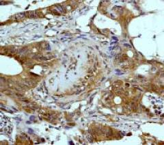 Immunohistochemistry (Formalin/PFA-fixed paraffin-embedded sections) - Anti-eIF4EBP1 antibody [Y329] (ab32024)