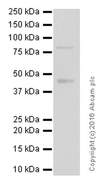Western blot - Anti-PKC beta 2 antibody [Y125] (ab32026)