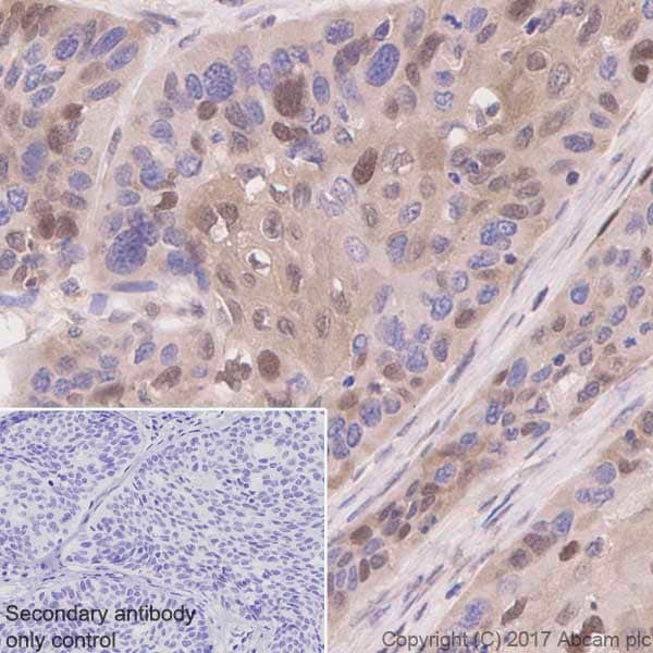 Immunohistochemistry (Formalin/PFA-fixed paraffin-embedded sections) - Anti-p27 KIP 1 antibody [Y236] (ab32034)
