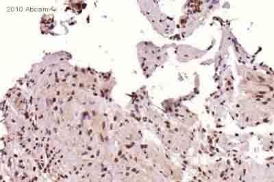Immunohistochemistry (Frozen sections) - Anti-p27 KIP 1 antibody [Y236] (ab32034)