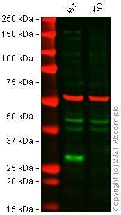 Western blot - Anti-p27 KIP 1 antibody [Y236] (ab32034)