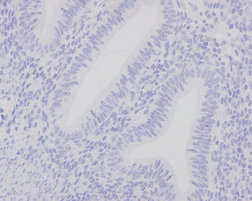 Immunohistochemistry (Formalin/PFA-fixed paraffin-embedded sections) - Anti-Mutant p53 antibody [Y5] (ab32049)