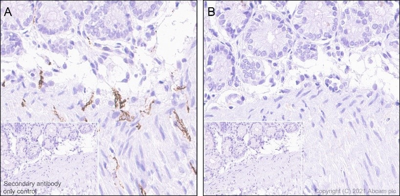 Immunohistochemistry (Formalin/PFA-fixed paraffin-embedded sections) - Anti-Tau (phospho S396) antibody [E178] (ab32057)