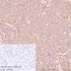 Immunohistochemistry (Formalin/PFA-fixed paraffin-embedded sections) - Anti-cIAP2 antibody [E40] (ab32059)