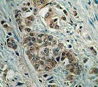 Immunohistochemistry (Formalin/PFA-fixed paraffin-embedded sections) - Anti-Bid antibody [Y8] (ab32060)