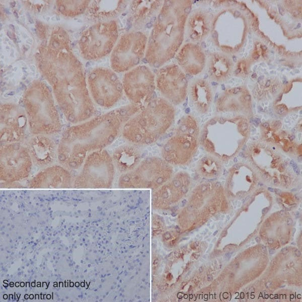 Immunohistochemistry (Formalin/PFA-fixed paraffin-embedded sections) - Anti-PP2A alpha + beta antibody [YE351] (ab32065)