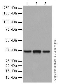 Western blot - Anti-PP2A alpha + beta antibody [YE351] (ab32065)