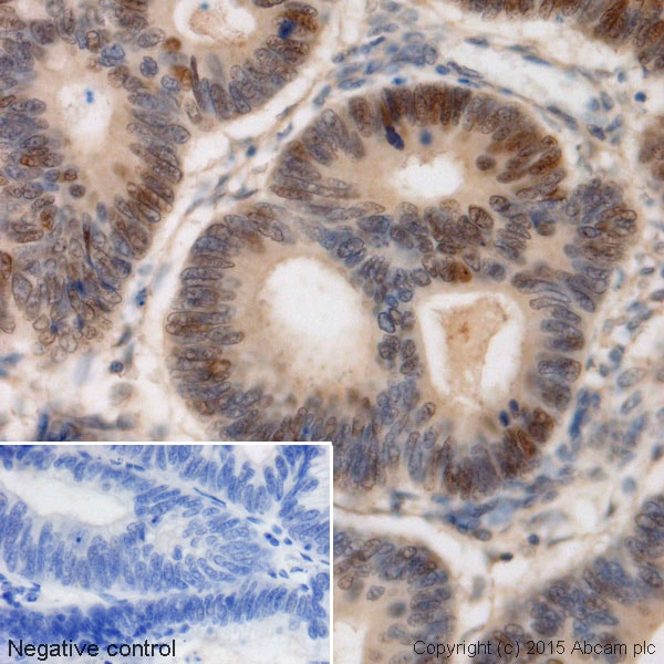 Immunohistochemistry (Formalin/PFA-fixed paraffin-embedded sections) - Anti-c-Myc antibody [Y69] (ab32072)