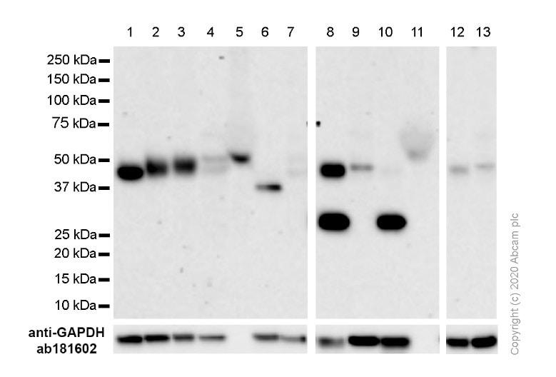 Western blot - Anti-CCR7 antibody [E75] (ab32075)
