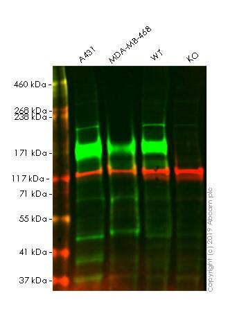 Western blot - Anti-EGFR antibody [E235] (ab32077)