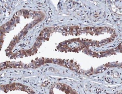 Immunohistochemistry (Formalin/PFA-fixed paraffin-embedded sections) - Anti-ERK2 antibody [E460] (ab32081)