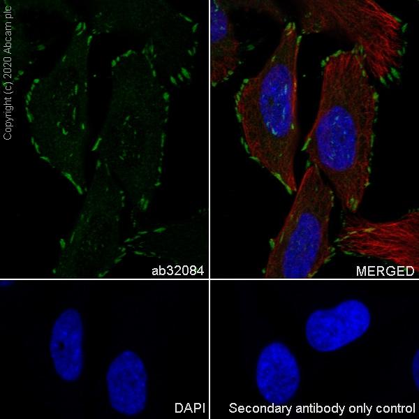 Immunocytochemistry - Anti-Paxillin antibody [Y113] (ab32084)