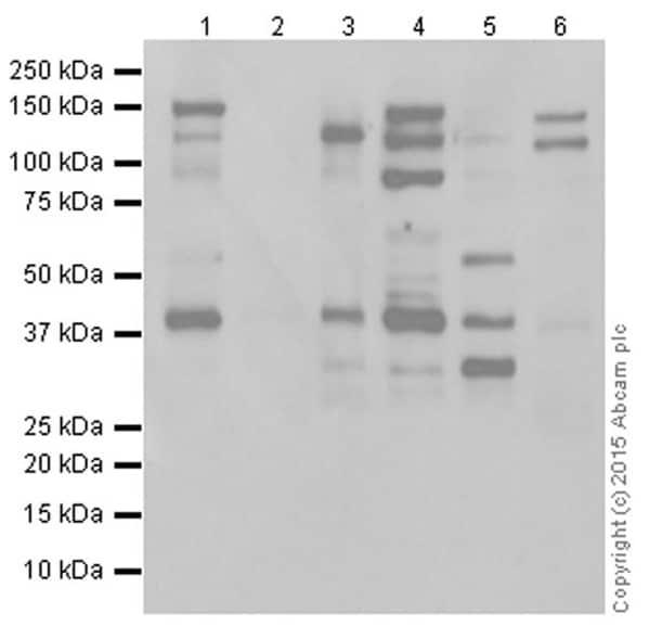 Western blot - Anti-MCL1 antibody [Y37] (ab32087)