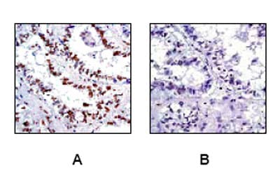 Immunohistochemistry (Formalin/PFA-fixed paraffin-embedded sections) - Anti-CREB (phospho S133) antibody [E113] (ab32096)