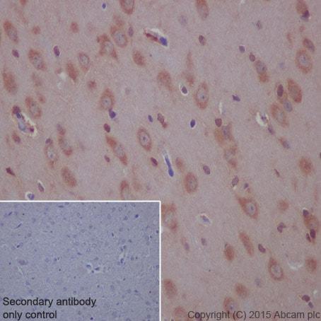 Immunohistochemistry (Formalin/PFA-fixed paraffin-embedded sections) - Anti-beta Arrestin 1 antibody [E274] (ab32099)