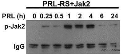 Western blot - Anti-JAK2 (phospho Y1007 + Y1008) antibody [E132] (ab32101)