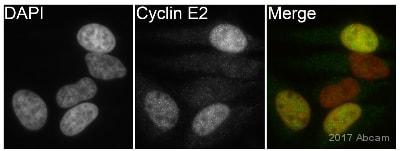 Immunocytochemistry/ Immunofluorescence - Anti-Cyclin E2 antibody [E142] (ab32103)