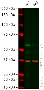 Western blot - Anti-ELK1 antibody [E277] (ab32106)