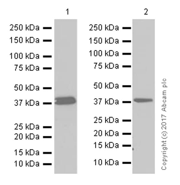 Western blot - Anti-AMPK beta 1 antibody [Y367] (ab32112)