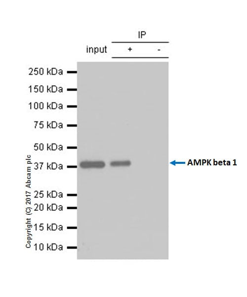 Immunoprecipitation - Anti-AMPK beta 1 antibody [Y367] (ab32112)
