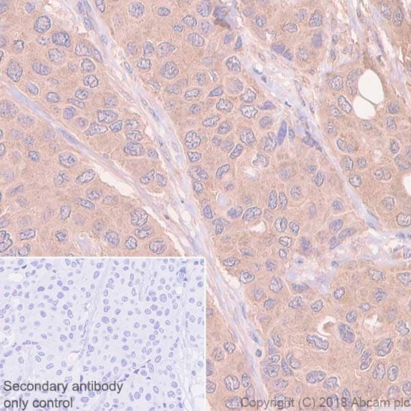 Immunohistochemistry (Formalin/PFA-fixed paraffin-embedded sections) - Anti-RSK1 p90 antibody [E4] (ab32114)