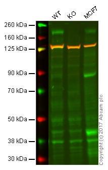 Western blot - Anti-ErbB 3 antibody [E186] (ab32121)