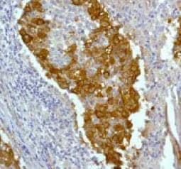 Immunohistochemistry (Formalin/PFA-fixed paraffin-embedded sections) - Anti-CrkL antibody [Y243] (ab32126)