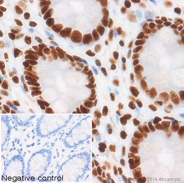 Immunohistochemistry (Formalin/PFA-fixed paraffin-embedded sections) - Anti-Histone H3 (acetyl K9) antibody [Y28] - ChIP Grade (ab32129)