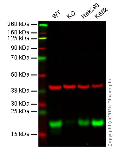 Western blot - Anti-eIF4EBP1 antibody [Y330] (ab32130)