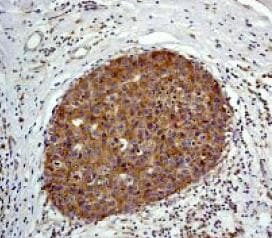 Immunohistochemistry (Formalin/PFA-fixed paraffin-embedded sections) - Anti-MAP2K1IP1 antibody [Y130] (ab32134)