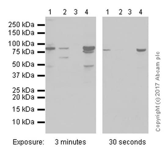 Western blot - Anti-IKK beta antibody [Y466] (ab32135)