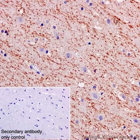 Immunohistochemistry (Formalin/PFA-fixed paraffin-embedded sections) - Anti-Amyloid Precursor Protein antibody [Y188] (ab32136)