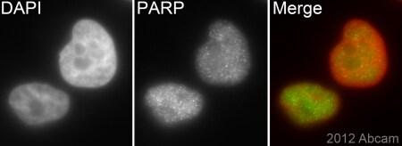 Immunocytochemistry/ Immunofluorescence - Anti-PARP1 antibody [E102] (ab32138)