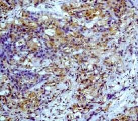 Immunohistochemistry (Formalin/PFA-fixed paraffin-embedded sections) - Anti-PP2A alpha + beta antibody [Y119] (ab32141)