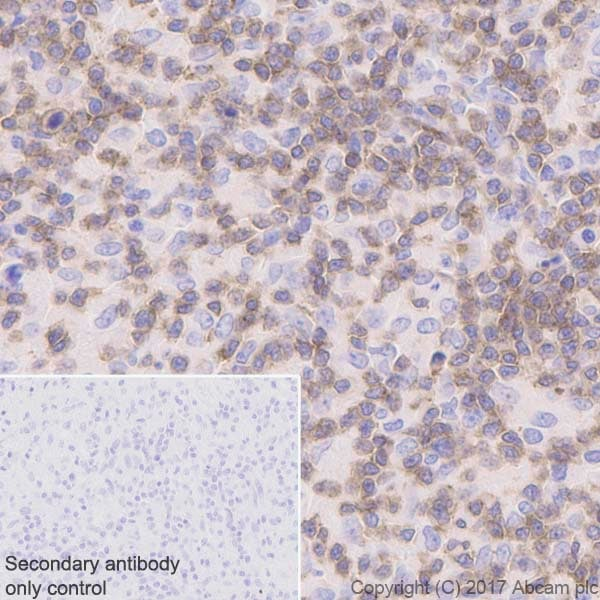 Immunohistochemistry (Formalin/PFA-fixed paraffin-embedded sections) - Anti-Lck antibody [Y123] (ab32149)