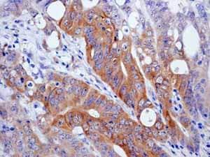 Immunohistochemistry (Formalin/PFA-fixed paraffin-embedded sections) - Anti-EIF2S1 (phospho S51) antibody [E90] (ab32157)