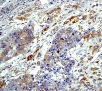 Immunohistochemistry (Formalin/PFA-fixed paraffin-embedded sections) - Anti-EIF2S1 (phospho S51) antibody [E90] (ab32157)
