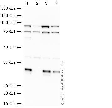 Western blot - Anti-Axin 2 antibody (ab32197)