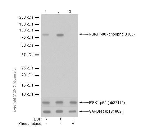 Western blot - Anti-RSK1 p90 (phospho S380) antibody [E239] (ab32203)