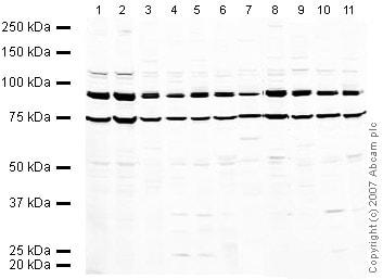 Western blot - Anti-Gephyrin antibody (ab32206)