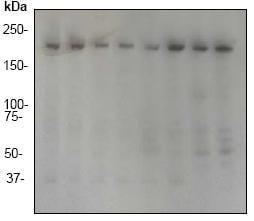 Western blot - Anti-RhoGAP antibody [EP489Y] (ab32328)