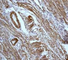 Immunohistochemistry (Formalin/PFA-fixed paraffin-embedded sections) - Anti-Caldesmon/CDM antibody [E89] (ab32330)