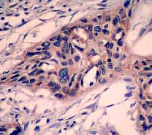 Immunohistochemistry (Formalin/PFA-fixed paraffin-embedded sections) - Anti-Caspase-3 antibody [E87] (ab32351)