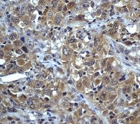 Immunohistochemistry (Formalin/PFA-fixed paraffin-embedded sections) - Anti-Phospholipase A2 activator protein (PLAP) antibody [Y102] (ab32354)