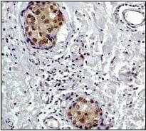 Immunohistochemistry (Formalin/PFA-fixed paraffin-embedded sections) - Anti-S6K1 antibody [E175] (ab32359)