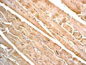 Immunohistochemistry (Formalin/PFA-fixed paraffin-embedded sections) - Anti-Desmin antibody [Y66] - Cytoskeleton Marker (ab32362)