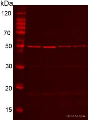 Western blot - Anti-Desmin antibody [Y66] - Cytoskeleton Marker (ab32362)