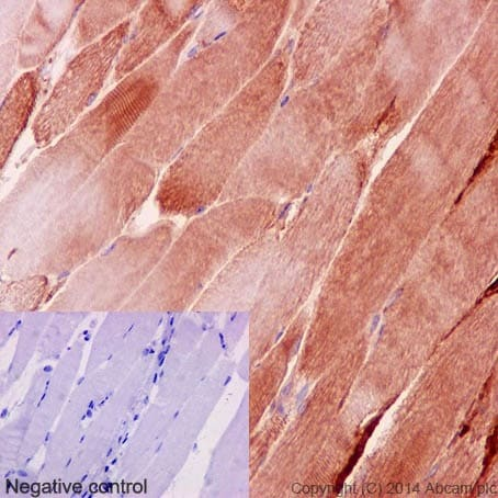 Immunohistochemistry (Formalin/PFA-fixed paraffin-embedded sections) - Anti-Desmin antibody [Y66] - Cytoskeleton Marker (ab32362)